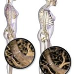Types of Osteoporosis| Their Causes and Tips for prevention