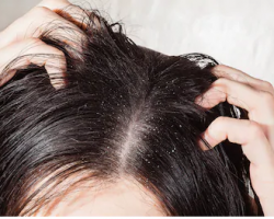 How I Got Rid of Dandruff Naturally