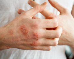 herbs for eczema